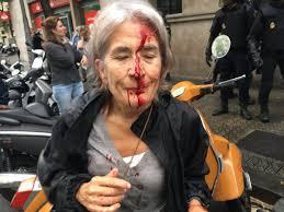 Violenze contro i manifestanti a Barcellona